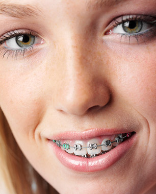 img metalbraces