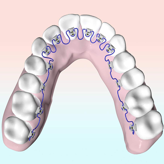 inbrace dental braces