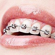 treatment selfligating braces thumb