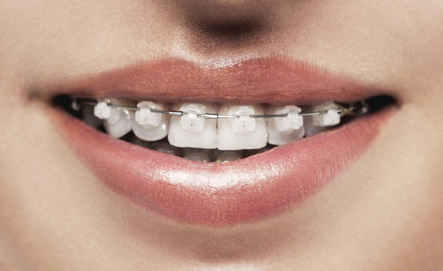 Avoiding Stains With Clear Braces