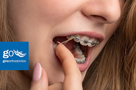 Learn More About Why Elastics Are Needed For Orthodontic Patients