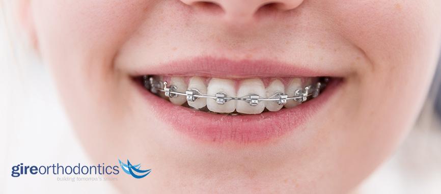 how long braces