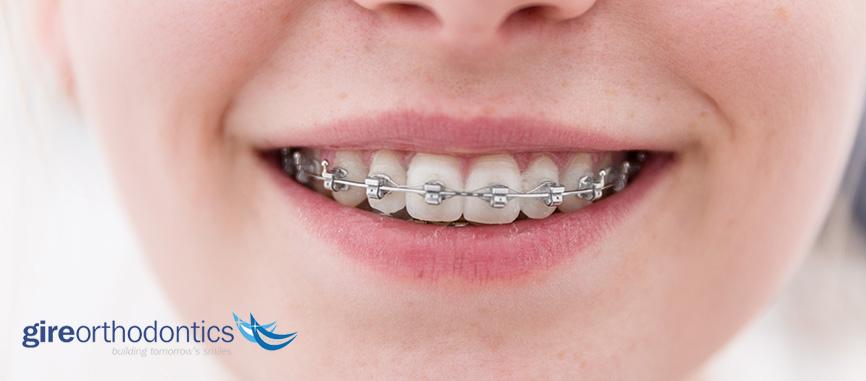 How Long Will Orthodontic Treatment Braces Last