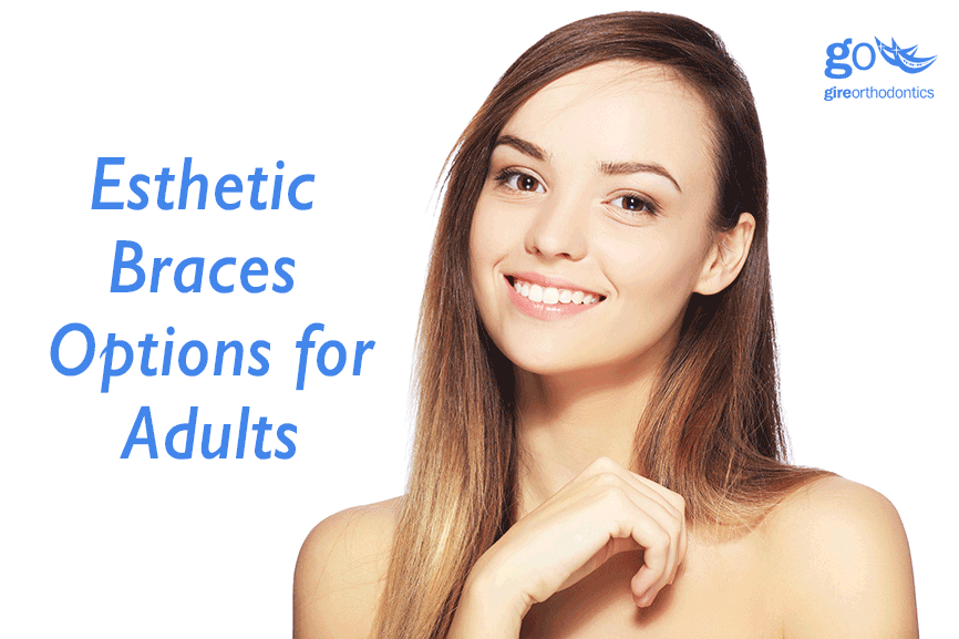 Esthetic Braces for Adults