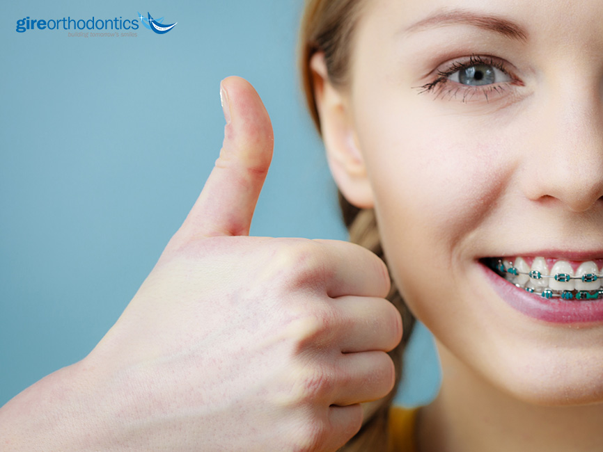 Get Along with Your Braces with These Tips