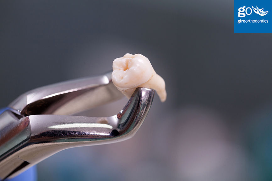Will Your Orthodontist Need Teeth Pulled Before Putting On Braces